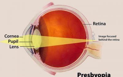 Presbyopia Explained